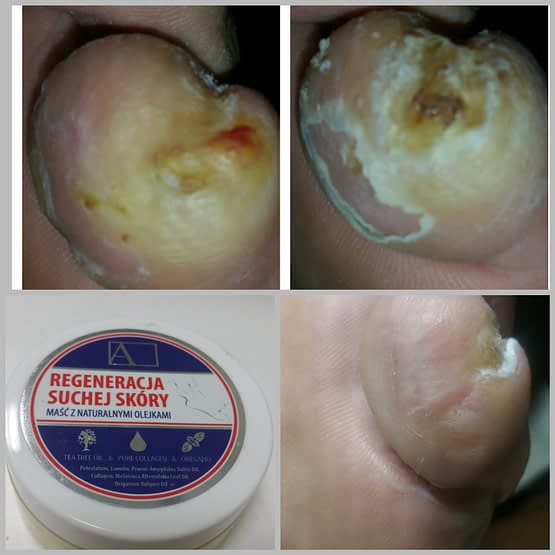 Skin Ointment – Antibacterial, Anti-fungal, Moisturizing Cream for Nails, Feet, Hands, Elbows