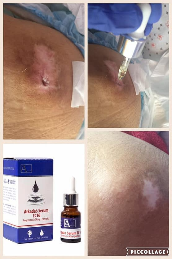 Serum TC16 Immediate Face, Body Skin and Nails Treatment (Acne, Wrinkles, Fungi, Infections, Burns, etc.)